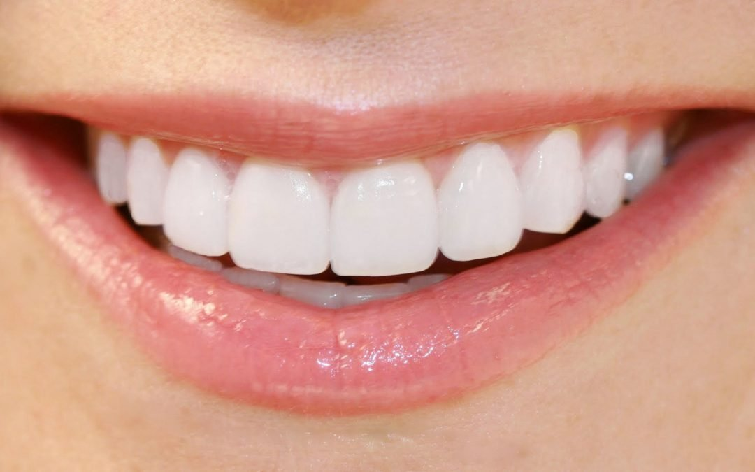 Teeth Whitening – Giving you a Brighter, Whiter Smile!