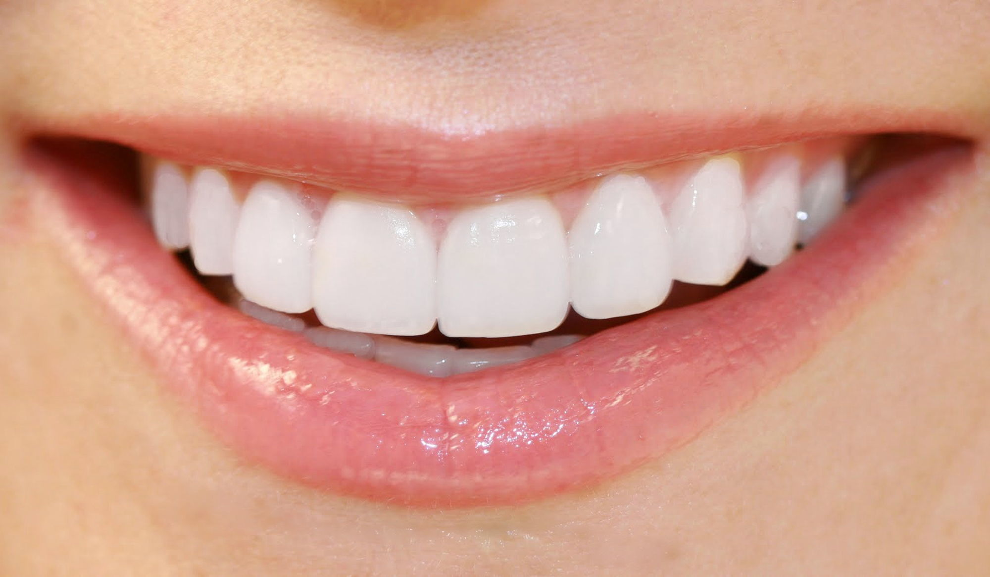 Teeth Whitening Giving you a Brigther Whiter Smile North Lakes