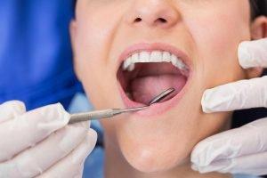 Dentist near Morayfield Passion Family Dental