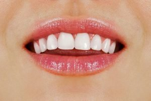 Passion Family Dentist Tips 6 Effective Ways To Get Healthy White Teeth