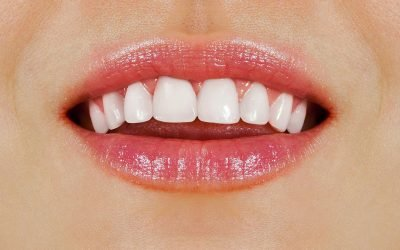 Passion Family Dentist Tips: 6 Effective Ways To Get Healthy, White Teeth