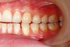 Sensitive Teeth North Lakes