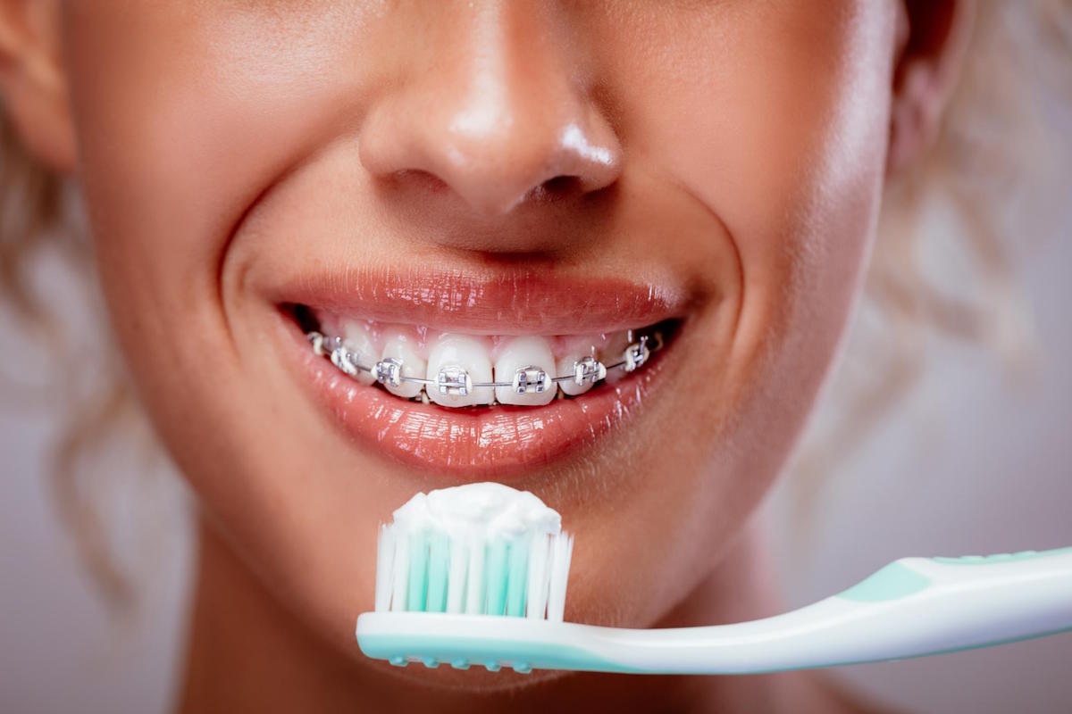 North Lakes Dentist Tips How can I keep my teeth clean when wearing braces