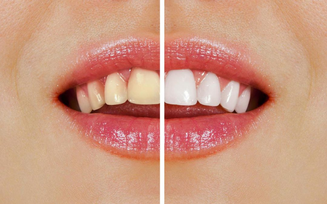 Over-the-Counter Whitening vs Professional Teeth Whitening – Which One Wins?