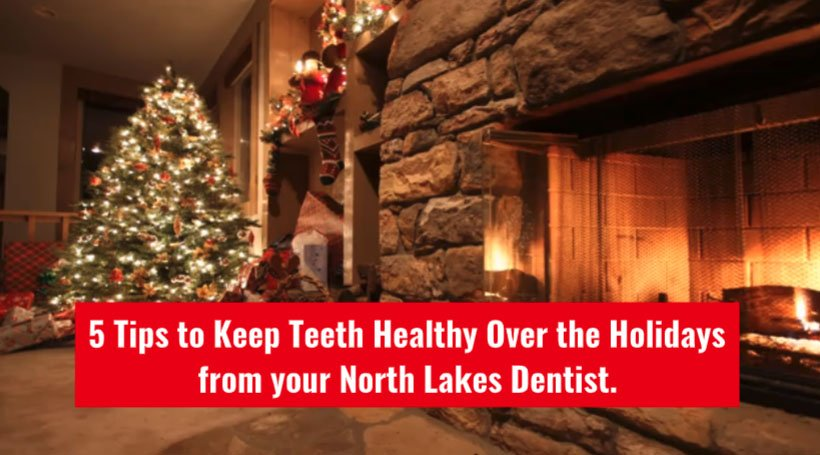5 tips to keep teeth healthy over the holidays from your north lakes dentist