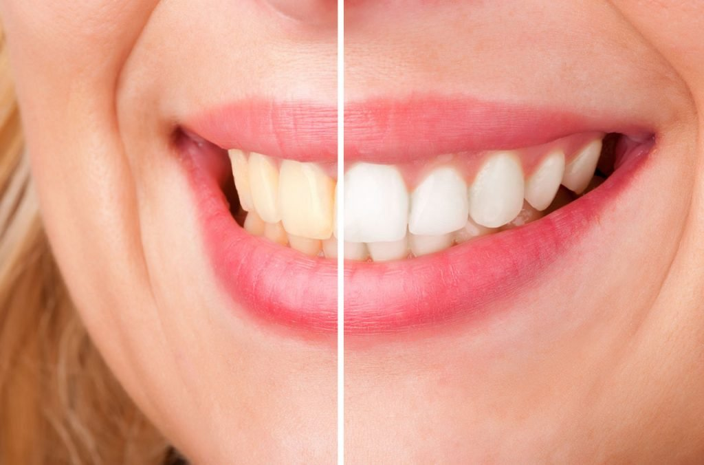 how to achieve a brighter smile north lakes