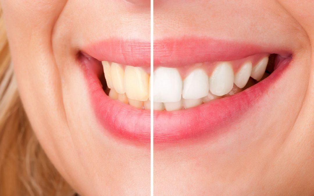 How to Achieve a Brighter Smile