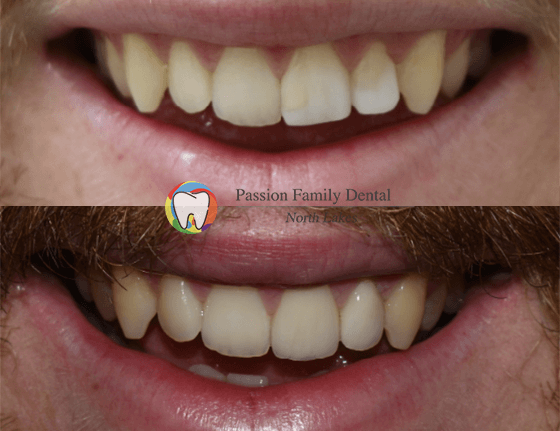 passion family dental north lakes case 1