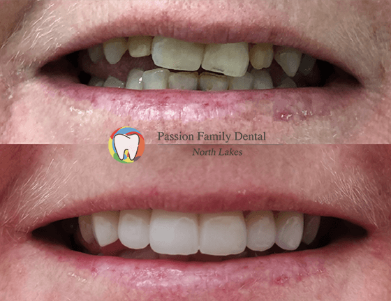 passion family dental north lakes case 2