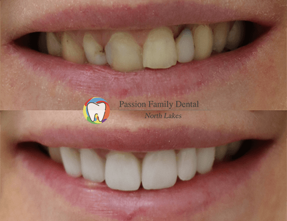 passion family dental north lakes case 3