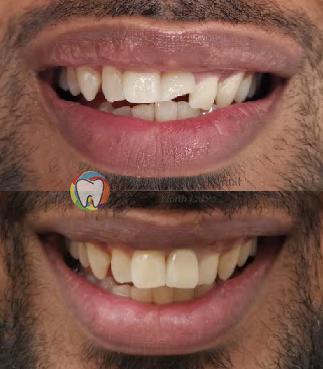 pasasion family dental north lakes case 4