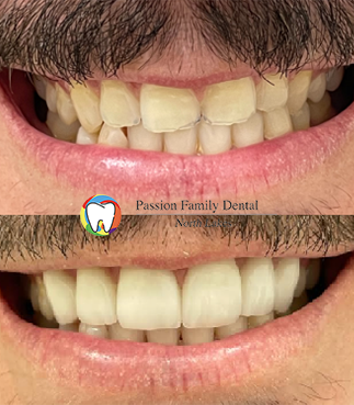 passion family dental north lakes case 5