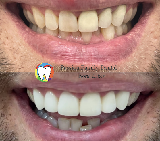 passion-family-dental-north-lakes-case-6