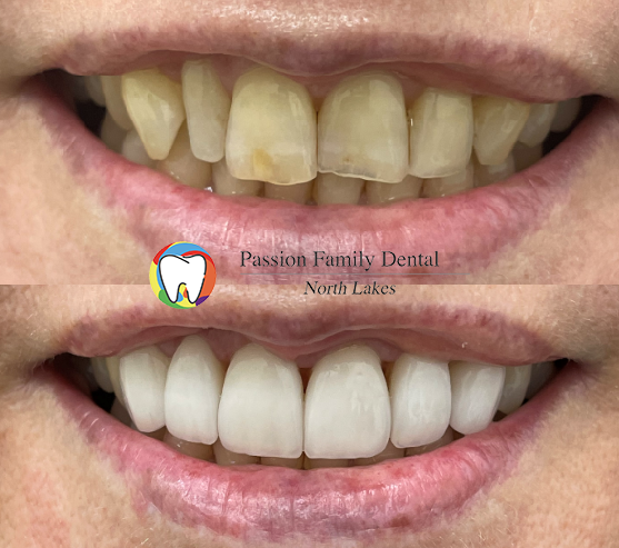 passion-family-dental-north-lakes-case-7