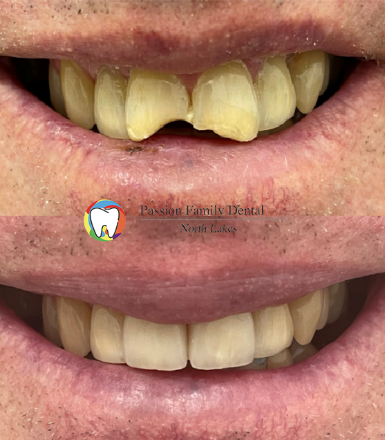 passiom family dental north lakes case 8
