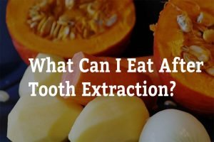 what can i eat after tooth extraction 7 tips from passion family dental north lakes