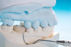 how long will dental crowns last answers from passion family dental north lakes