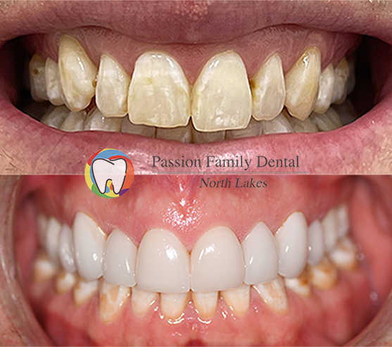 passion family dental north lakes case 9